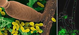 Nahaufnahme eines Biofilms bestehend aus zwei humanen Krankheitserregern, dem Pilz Candida albicans und dem Karies fördernden Bakterium Streptococcus mutans